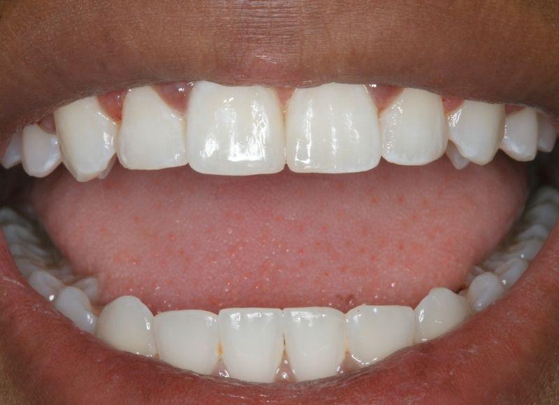 отбеливание зубов white glo